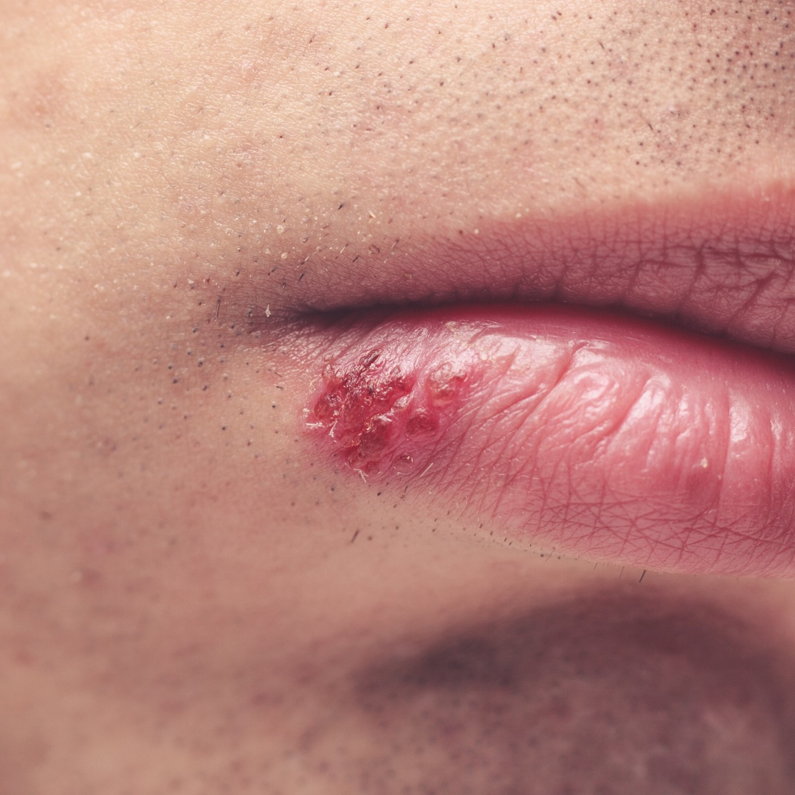 When to tell someone you have herpes