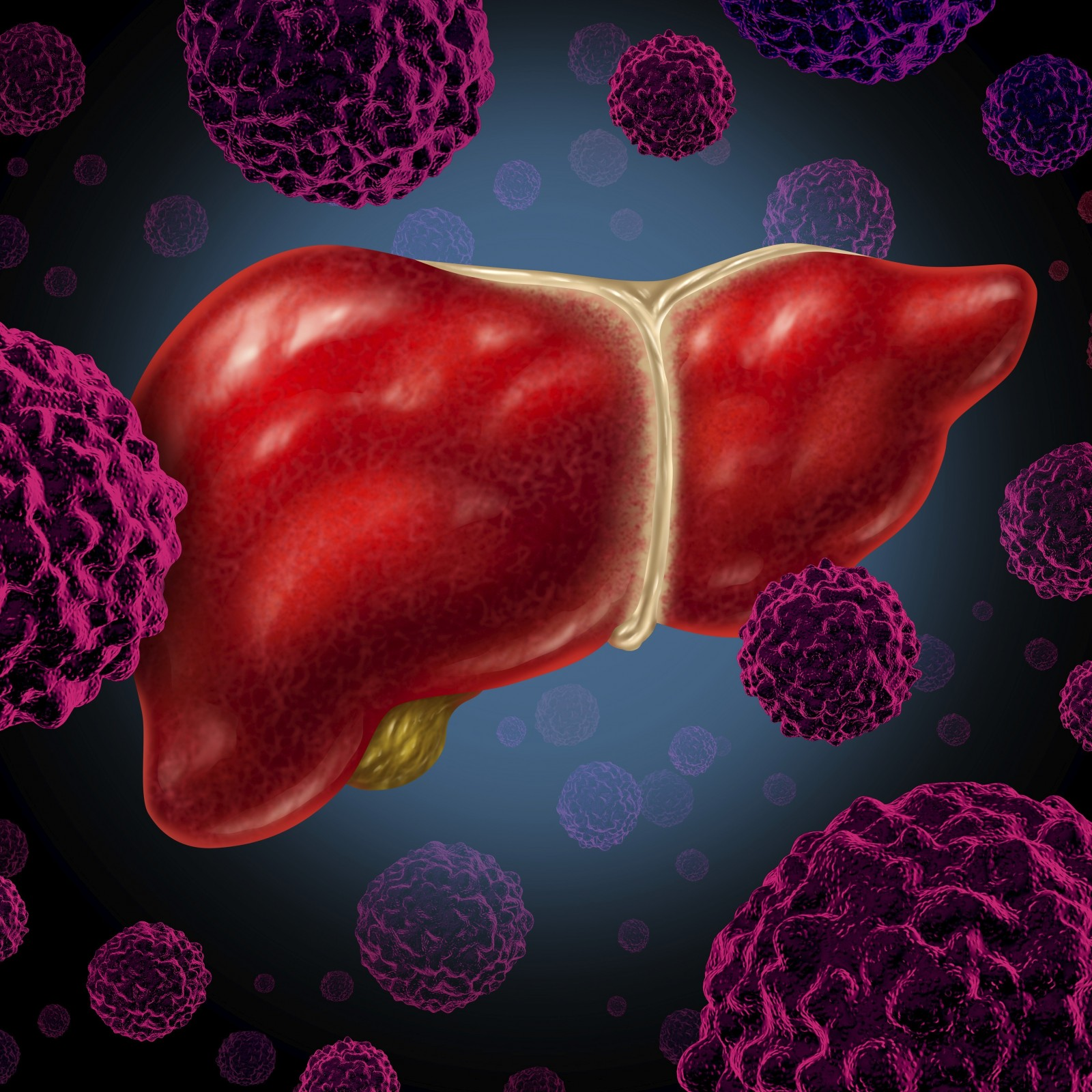 Liver Cancer And Hepatitis B Hep