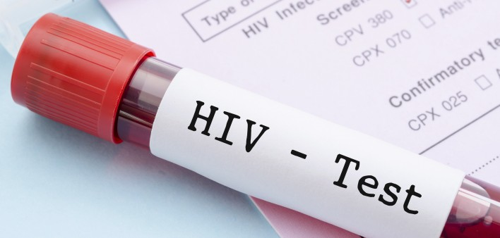 CDC Revises HIV Testing Guidelines to Better ID Early Cases
