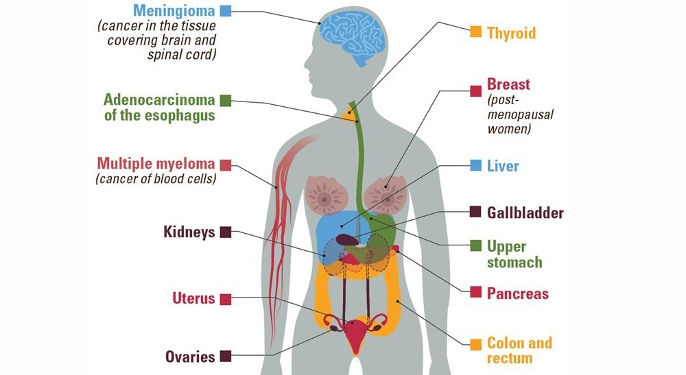 13 Types Of Cancer Linked To Obesity Cdc Says Cancer Health