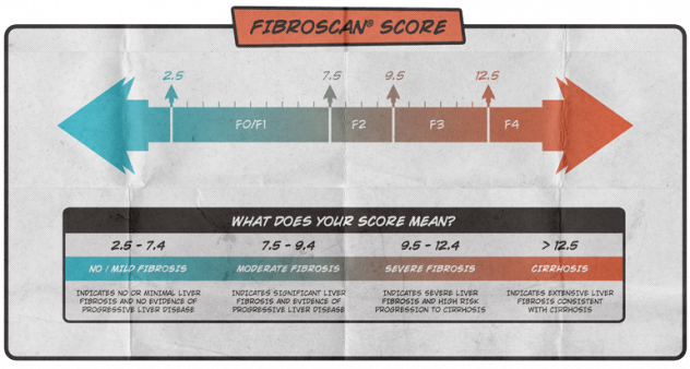 What Is A Fibroscan