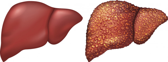 what s the difference between fibrosis and cirrhosis hep