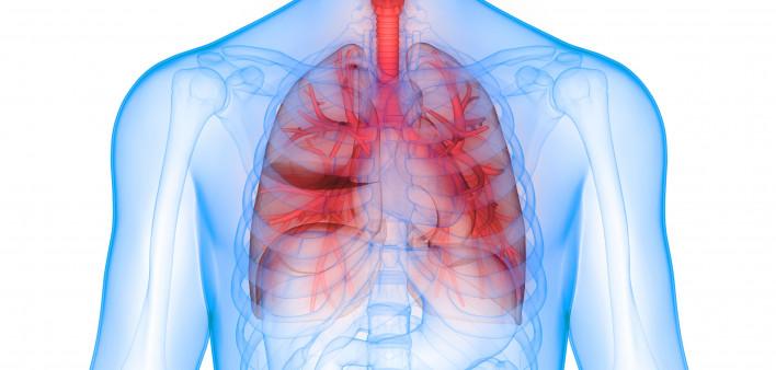 Tecentriq Plus Chemotherapy Slows Progression of Advanced