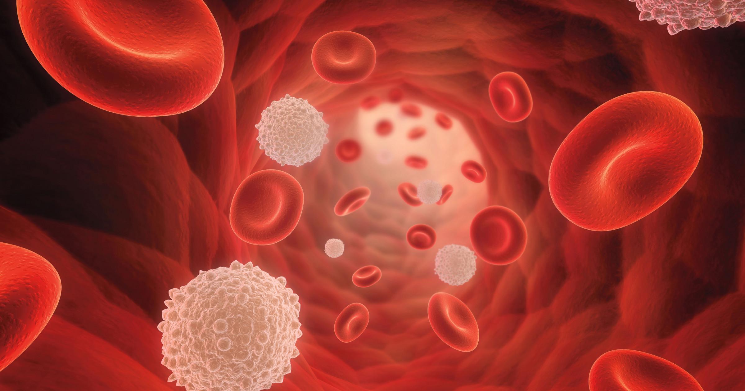 Thrombocytopenia (low platelets) - POZ